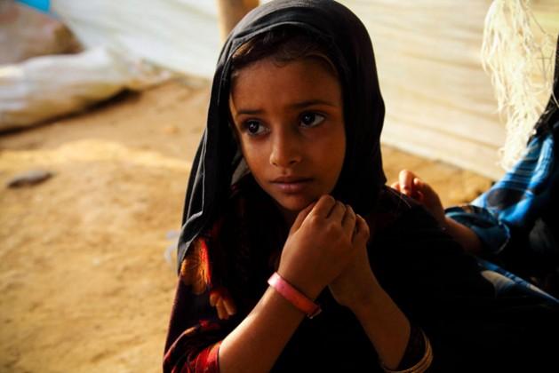 En Mazrak, Yemen, una niña de cinco años, diagnosticada como desnutrida, recibe una pulsera rosada para indicar que no ha comido lo suficiente. Crédito: Hugh Macleod / ACNUR