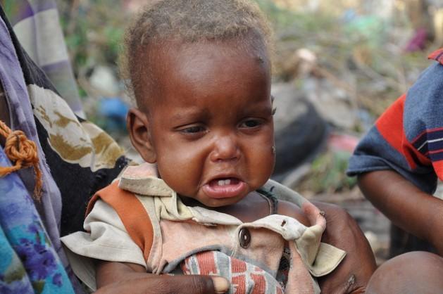 Un niño del sur de Somalia que sobrevivió el largo viaje hasta un campamento de desplazados en la capital, Mogadiscio Crédito: Abdurrahman Warsameh/IPS