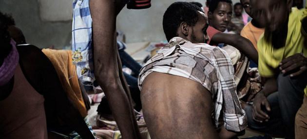 Un migrante de Eritrea muestra las enfermedades de la piel que contrajo en un centro de detención de Libia. Crédito: Alessio Romenzi/Unicef