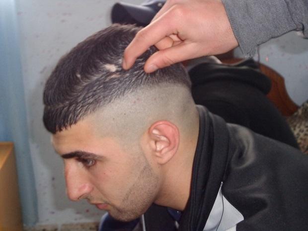 A Ahmed Othman Safi, de 17 años, le quedó una cicatriz luego de que soldados israelíes le fracturaran el cráneo con la culata de sus armas durante su arresto. Crédito: Mel Frykberg/IPS