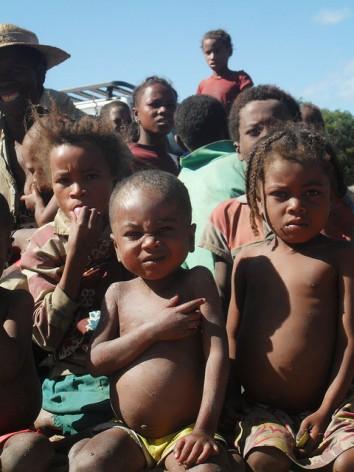 En algunos países africanos hay suficientes alimentos, pero es el tipo de alimentos disponibles lo que cuenta. Casi la mitad de las niñas y los niños de las zonas afectadas por la sequía en el sur de Madagascar sufren malnutrición. Crédito: Miriam Gathigah/IPS.