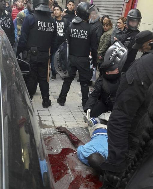 La foto del senegalés Serigne Dame Kame, con un brazo destrozado y cercado en el suelo por policías, en medio de un charco de sangre, fue ampliamente difundida en las redes sociales y provocó la indignación de ciudadanos de Buenos Aires. Crédito: Twitter