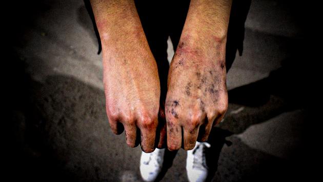 Un manifestante muestra los efectos en sus manos de la violencia policial. Foto: Félix Márquez/IPS